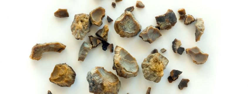 Kidney Stones: Symptoms, Causes, & How to Avoid Them